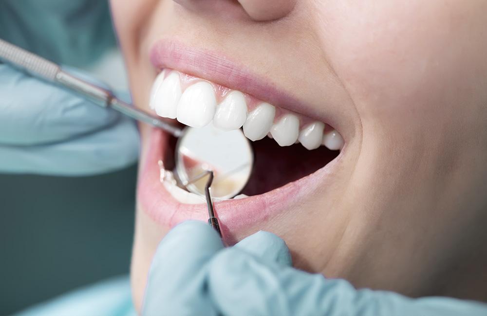 Impiantologia, Studio Dentistico Dott. Luca Lancieri. Specialista in odontostomatologia, protesi dentale, implantologia e parodontologia, Genova