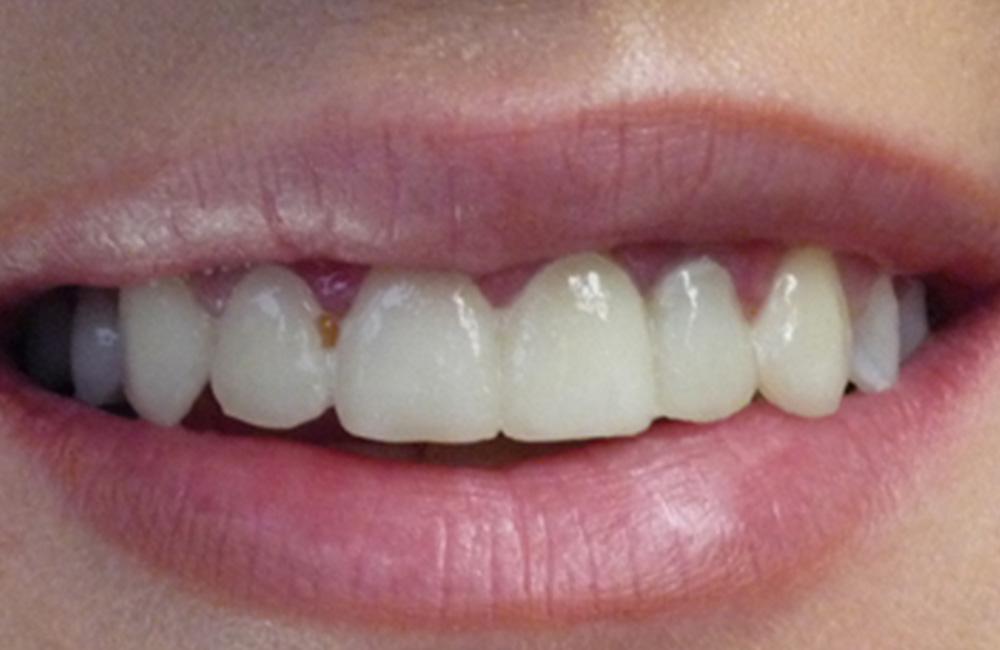 Smile design, Studio Dentistico Dott. Luca Lancieri. Specialista in odontostomatologia, protesi dentale, implantologia e parodontologia, Genova