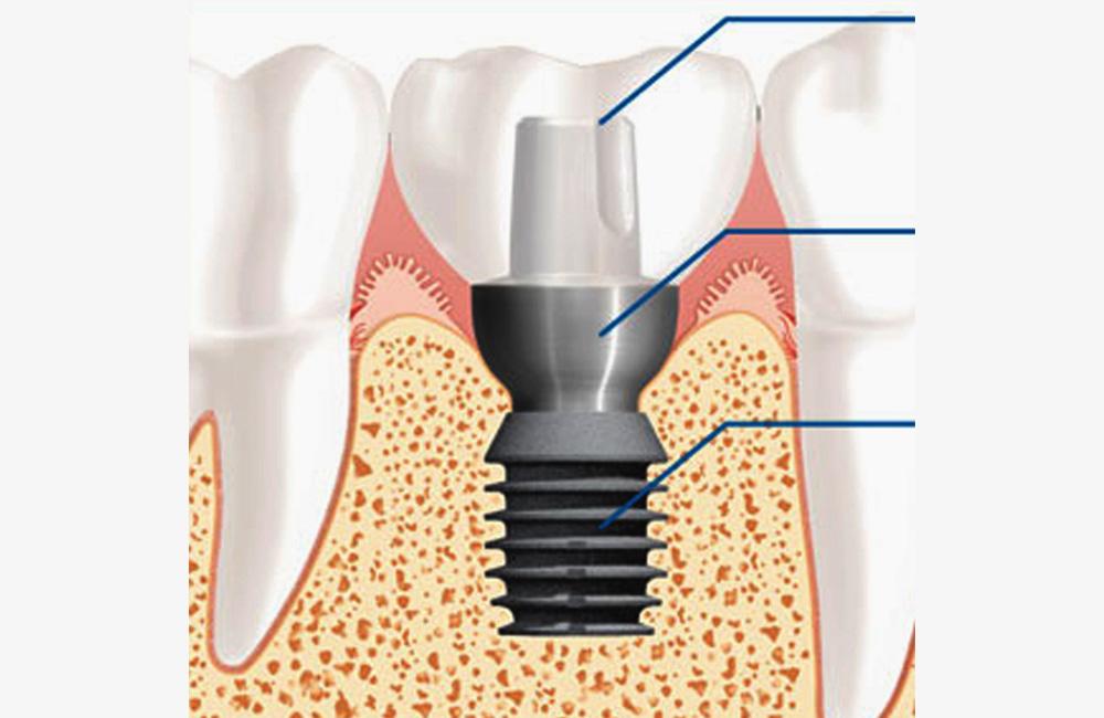 Short implants, Studio Dentistico Dott. Luca Lancieri. Specialista in odontostomatologia, protesi dentale, implantologia e parodontologia, Genova