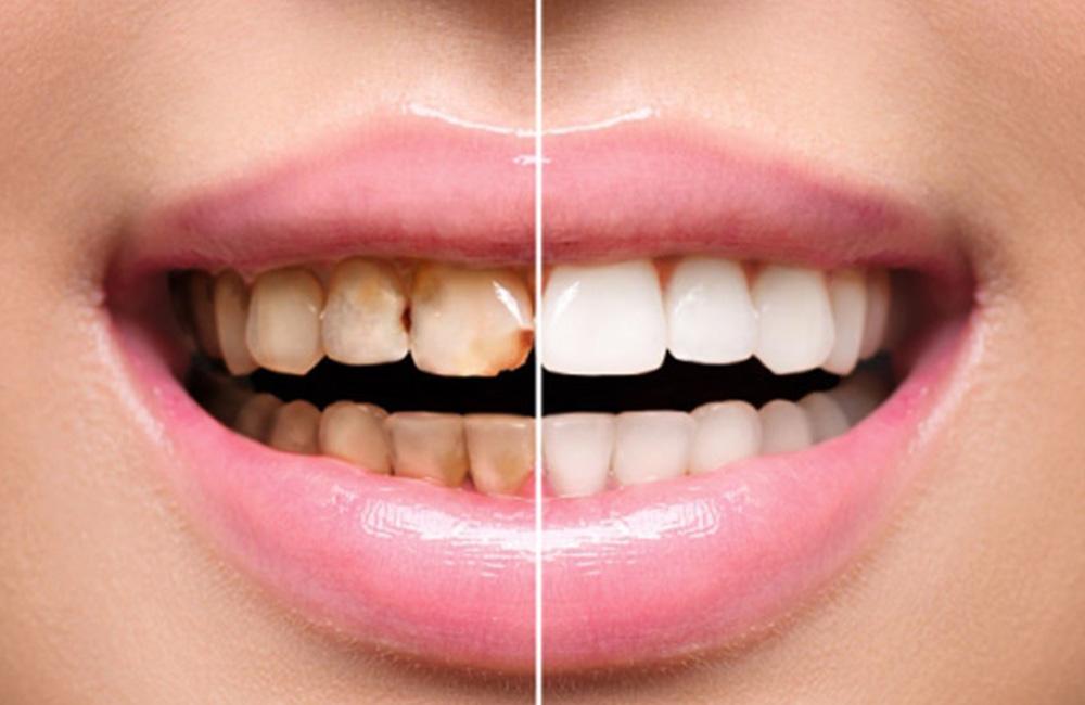 Detartrasi, Studio Dentistico Dott. Luca Lancieri. Specialista in odontostomatologia, protesi dentale, implantologia e parodontologia, Genova