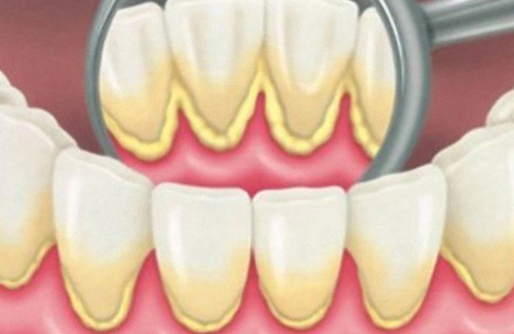 Rimozione placca, Studio Dentistico Dott. Luca Lancieri. Specialista in odontostomatologia, protesi dentale, implantologia e parodontologia, Genova