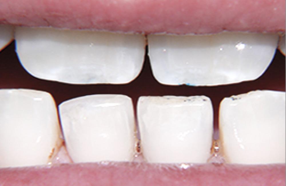 odontocosmesi, Studio Dentistico Dott. Luca Lancieri. Specialista in odontostomatologia, protesi dentale, implantologia e parodontologia, Genova