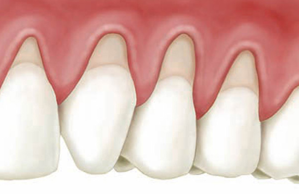 Malattie gengivali, Studio Dentistico Dott. Luca Lancieri. Specialista in odontostomatologia, protesi dentale, implantologia e parodontologia, Genova