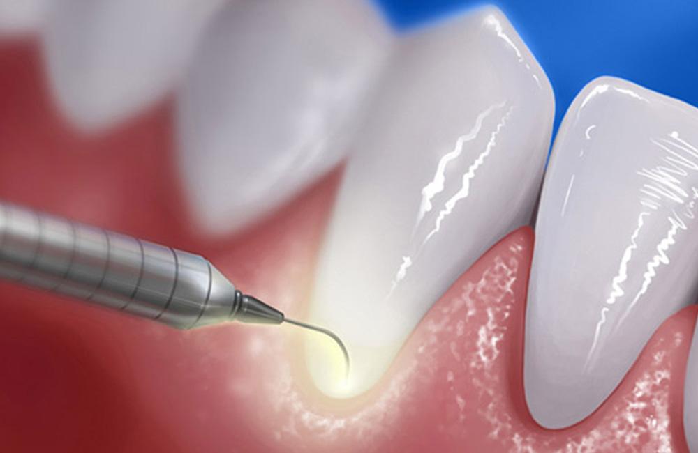 Laser paradontale, Studio Dentistico Dott. Luca Lancieri. Specialista in odontostomatologia, protesi dentale, implantologia e parodontologia, Genova