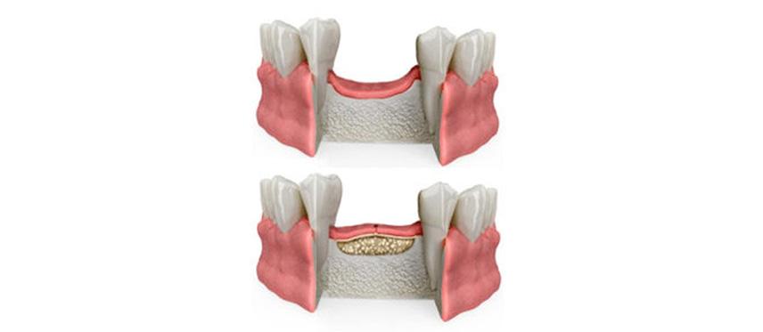 ROC, Studio Dentistico Dott. Luca Lancieri. Specialista in odontostomatologia, protesi dentale, implantologia e parodontologia, Genova
