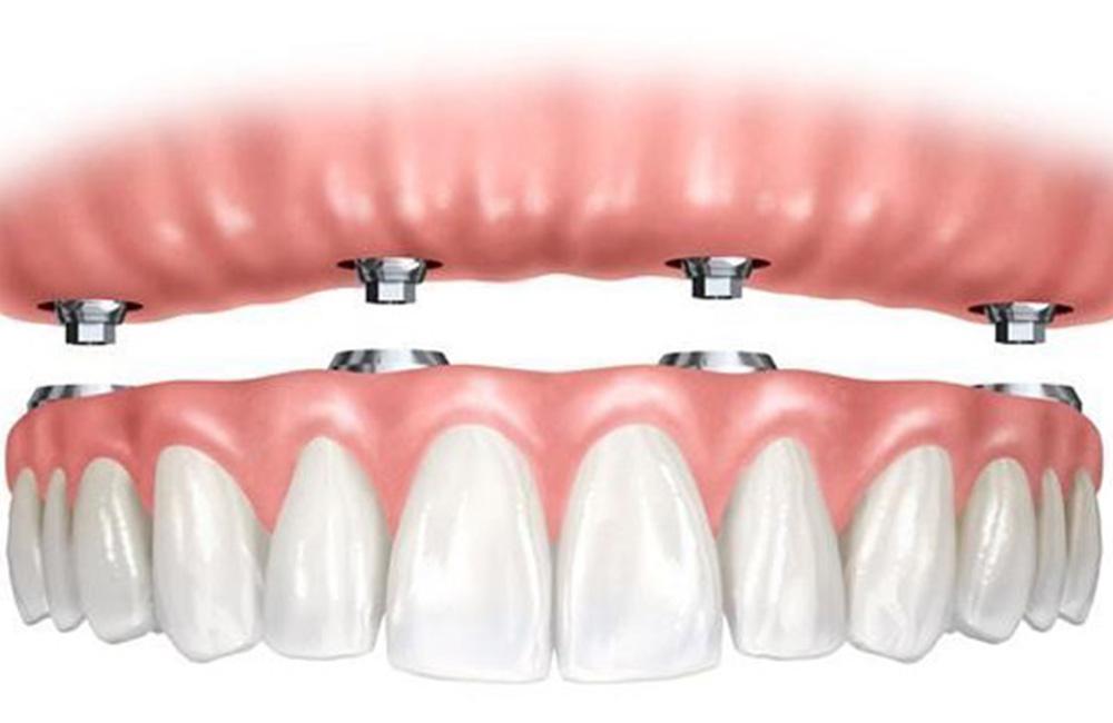 Implantologia, Studio Dentistico Dott. Luca Lancieri. Specialista in odontostomatologia, protesi dentale, implantologia e parodontologia, Genova
