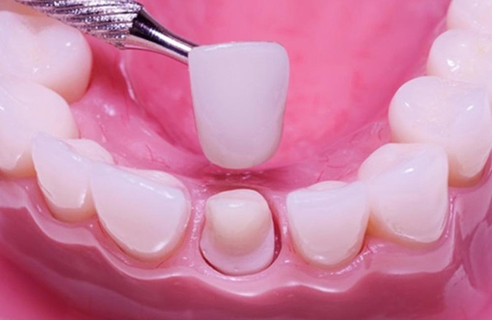 Corone estetiche, Studio Dentistico Dott. Luca Lancieri. Specialista in odontostomatologia, protesi dentale, implantologia e parodontologia, Genova